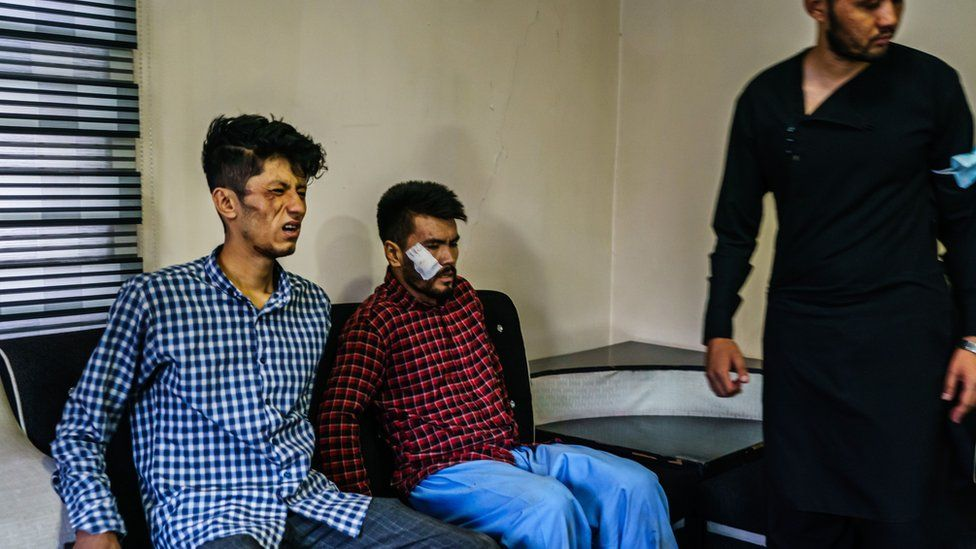 Journalists admit of beating by Taliban 2021